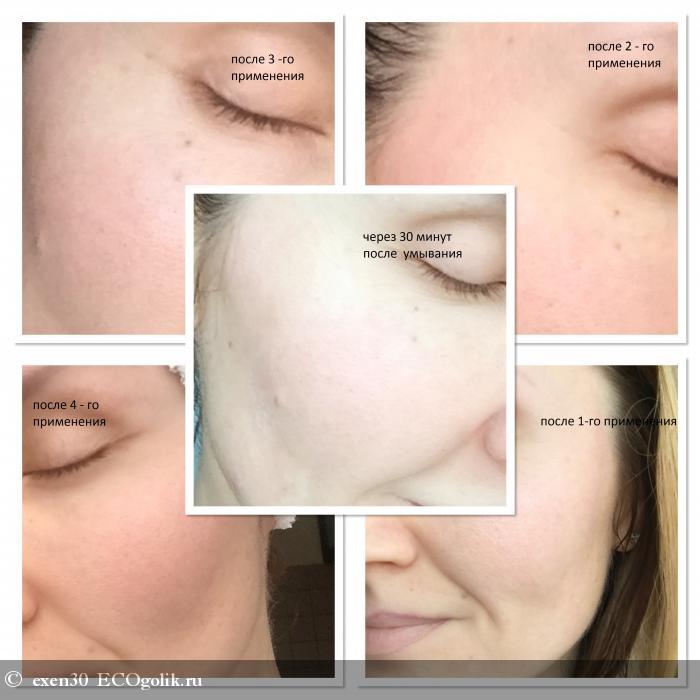 Обновление кожи с Mi&Ko - отзыв Экоблогера exen30