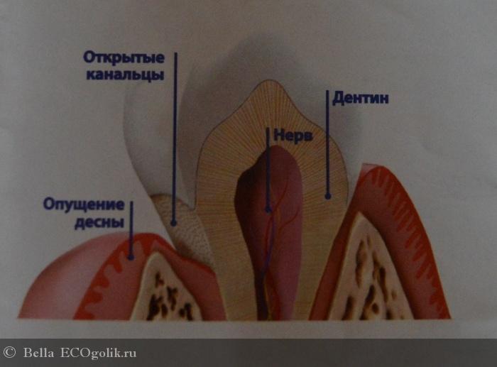 Уход за чувствительными зубами